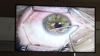 Lasik Surgery (Live Video)