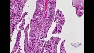Histopathology Extrahepatic bile ducts, common bile duct--Ad