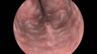 turp műtét iperplasia prostatica benigna