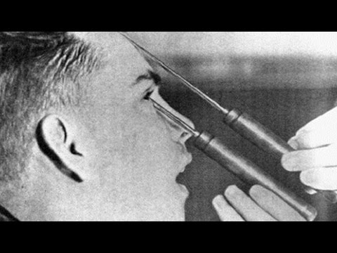 Top 10 Shocking Medical Practices Used In The Past