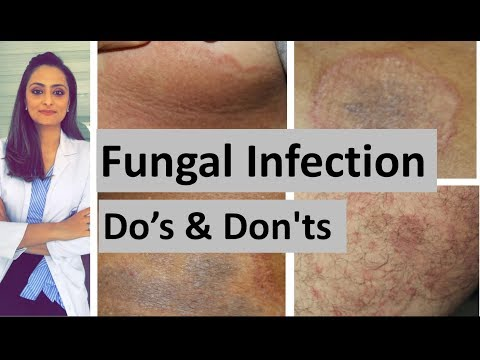 Photos of skin yeast infections
