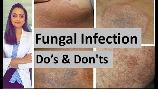 Fungal infection of skin | Do's and Don'ts | Dermatologist | Dr. Aanchal Panth