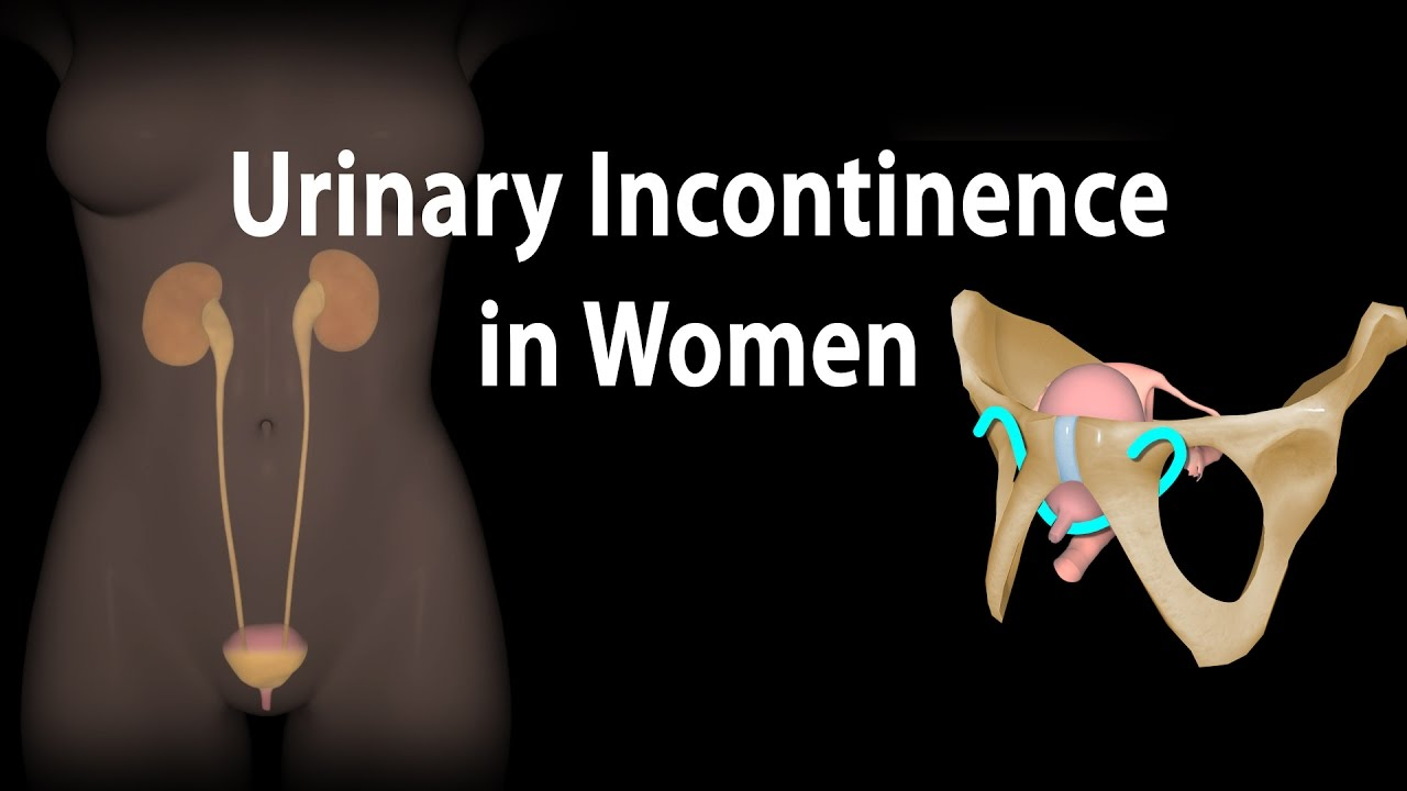 Urinary Incontinence in Women, Animation