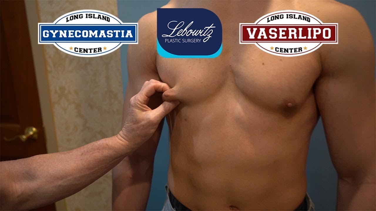 Download GYNECOMASTIA 19 y/o Westchester MALE Bilateral GLAND REMOVAL Surgery - Dr. Lebowitz