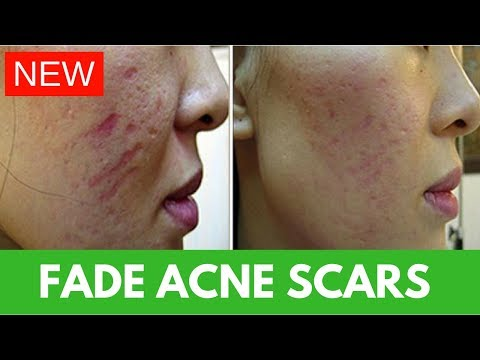 Fastest Acne Scar Fading Cream (100% WORKS!)