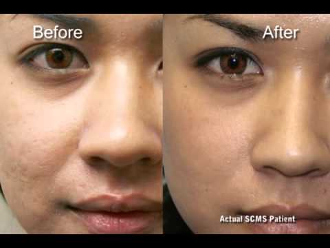 Before and after laser acne scar removal - YouTube