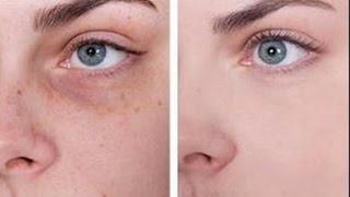 EN 3 JOURS    Enlever les taches sur votre visage