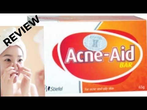 Best medicated soap for oily acne prone skin | open pores solution