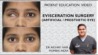 Evisceration / Artificial Eye Surgery: Patient Education Video by Dr Akshay Nair, Mumbai