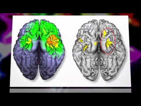 Cell Phone Exposure Effects on Brain; New Study Shows Impact of Radiation