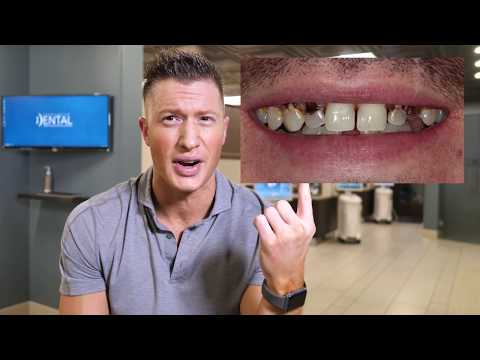 How to heal a broken teeth