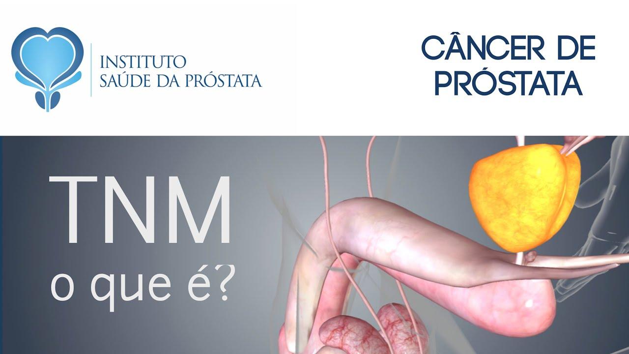 cáncer de próstata tnm es