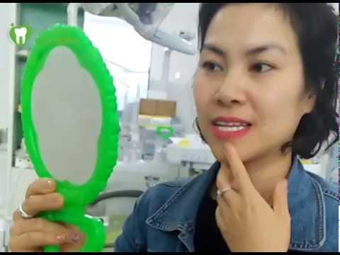 Feedback khách hàng sau phục hình răng sứ Clear Transform