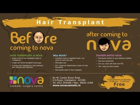 HAIR TRANSPLANTATION COMMERCIAL FOR NOVA COSMETICS BY S16 FLICKS