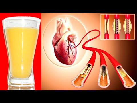 Take This in the Morning Before Breakfast!  to Clean Your Arteries & Lower High Blood Pressure