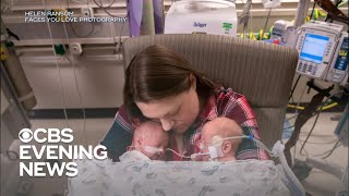 Hospital caring for record 12 sets of twins Video