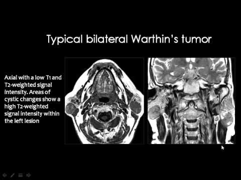Radiology Salivary Glands Imaging Head And Neck Youtube