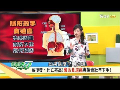 喉嚨卡卡、常咳嗽清痰?食道癌易復發、死亡率高,專挑青壯年下手!健康2.0 (完整版)