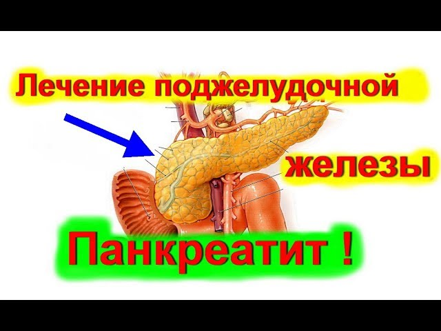 Как лечить панкреатит поджелудочной железы лекарства