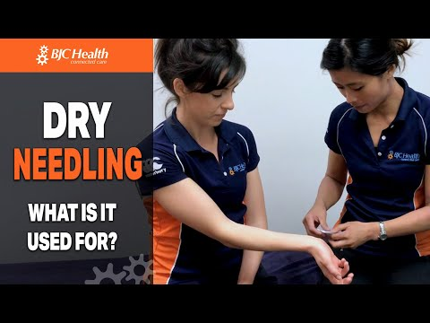 What's Dry Needling and really should You Attempt It