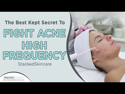 The Best Kept Secret To Fight Acne: High Frequency