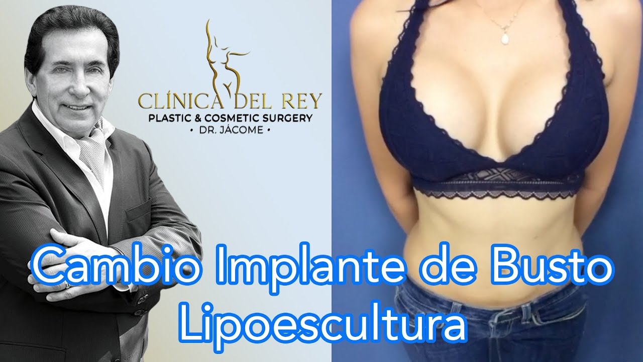 Cambio de Implantes de Busto + Liposucción en Clínica del Rey - Dr. Franco Reyes Jácome