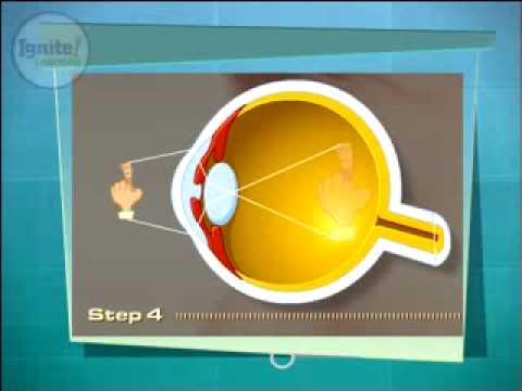 How Light Enters the Eye.flv