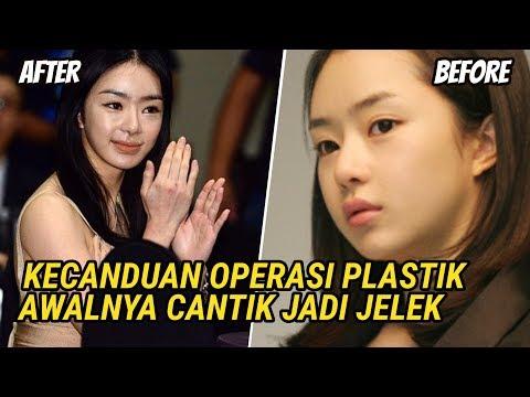 Keseringan Operasi Plastik, 5 Artis Korea Awalnya Cantik Jadi Jelek