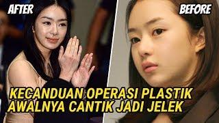 Download lagu Keseringan Operasi Plastik, 5 Artis Korea Awalnya Cantik Jadi Jelek