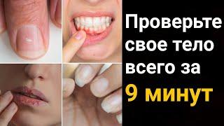 постер к видео 25 признаков того, что ваше тело испытывает недостаток жизненно важных питательных веществ