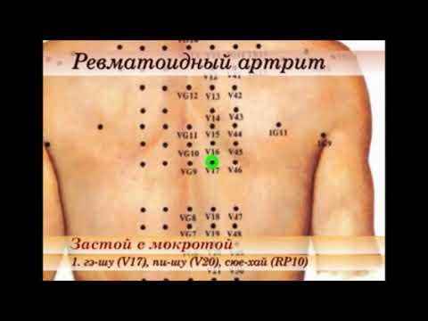 точки при ревматоидном артрите