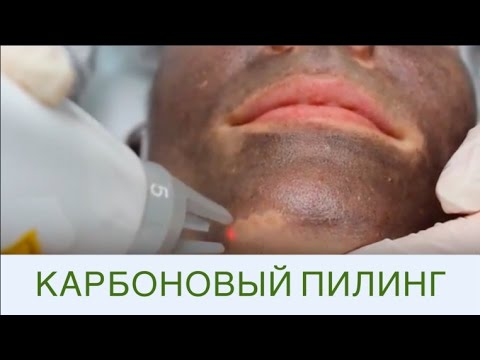 Лазерный карбоновый пилинг - эффективная чистка лица!