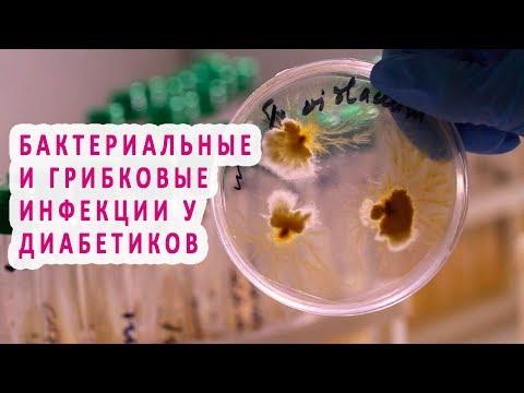 Бактериальные и грибковые инфекции при сахарном диабете