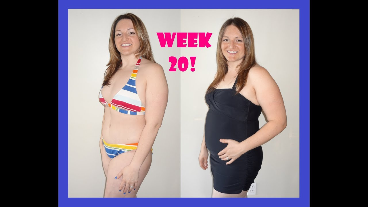 Pregnant after Tummy Tuck (Lower Body Lift) at 20 weeks / 5 months ...