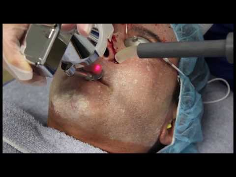 Treatment with Before/After Results: Newport Beach Laser Acne Scar Removal