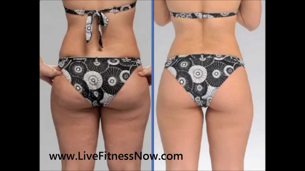 Brazil Butt Lift Can Help Tone Your Bum