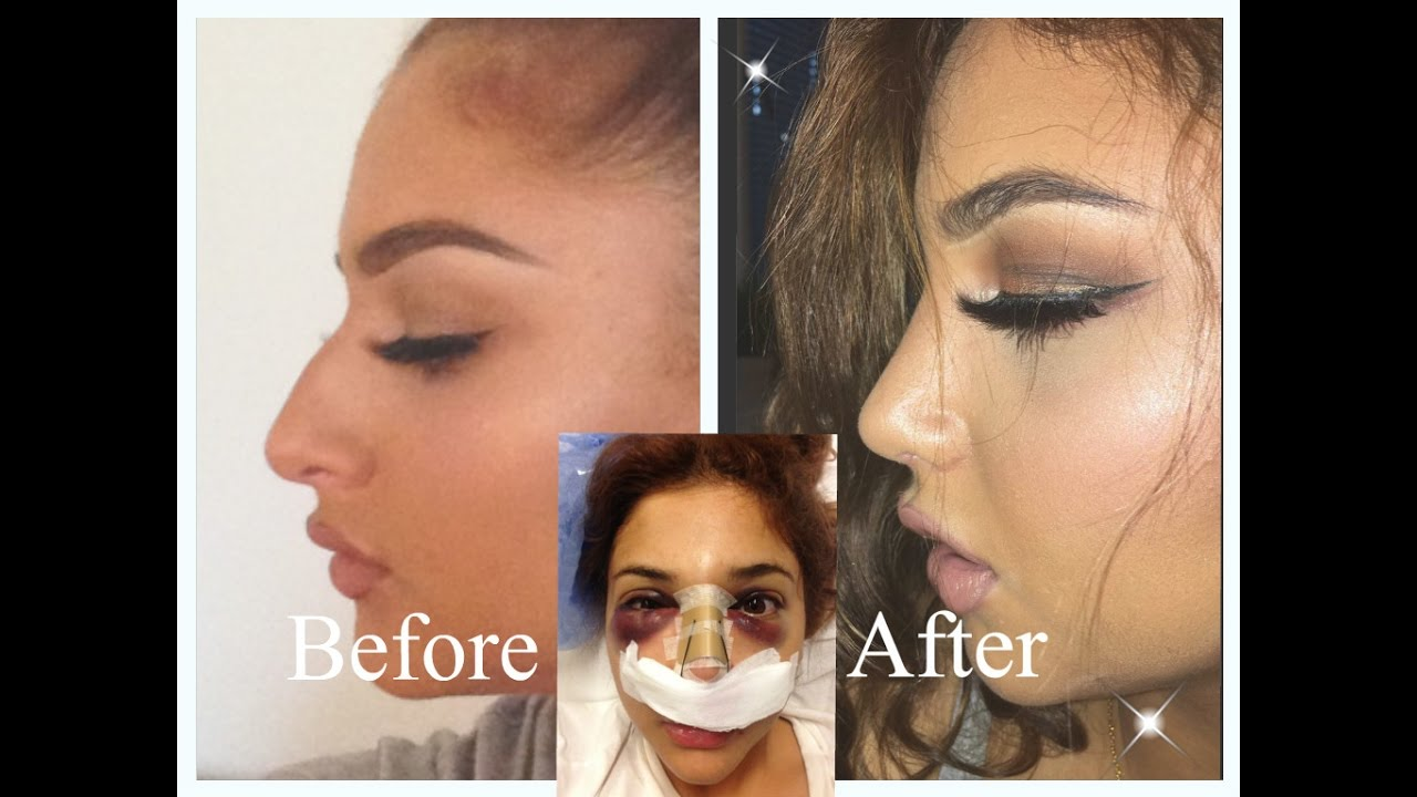Nose Job Experience Doctor Price Pain Recovery Etc Youtube