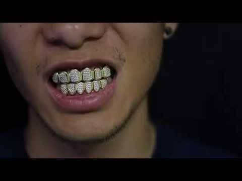 Custom Gold Grillz - 18k Gold Diamond Teeth Grillz