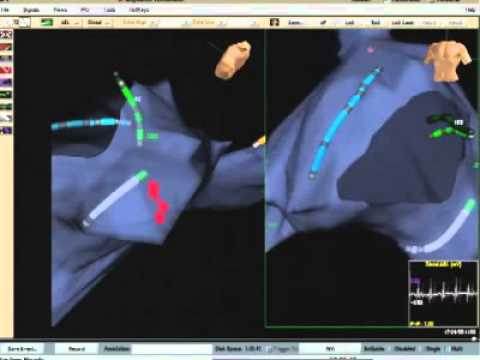 Electrophysiological Study & Catheter Ablation