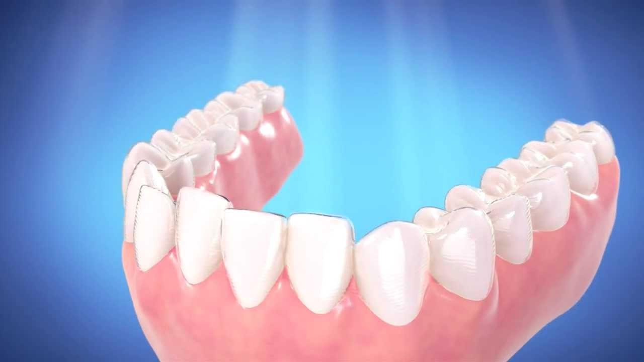 Invisalign at Total Orthodontics in Greenwood Village and Lone Tree ...