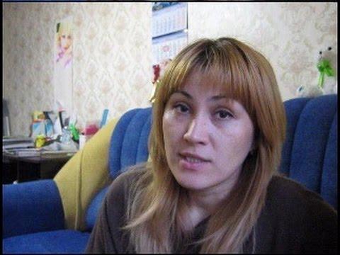 Блефаропластика Пластика век в Краснодаре