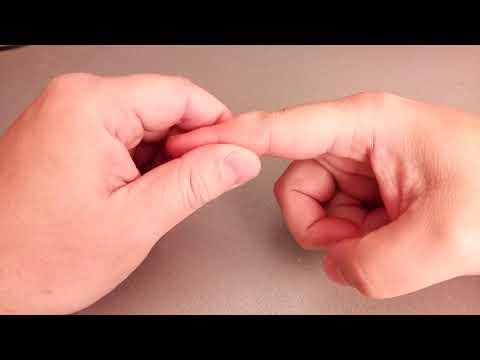 Как убрать гигрому на пальце #2. Мажем ЛИПОМИКСОМ уже месяц