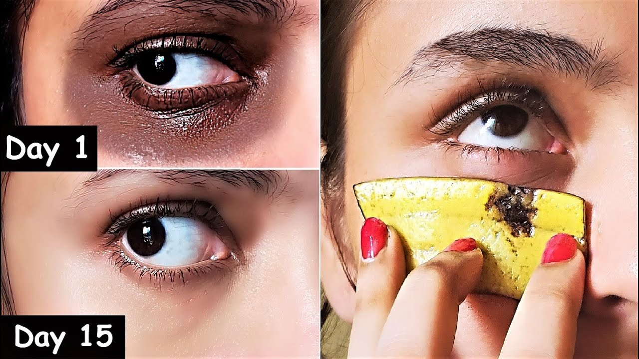 i Removed DARK CIRCLES in 15 Days with Banana Peel Eye Pack | Remove Eye Wrinkles & Under Eye bags