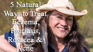 5 Things You Can Do To Naturally Heal Your Eczema, Psoriasis, Rosacea and Acne - Shann Nix Jones