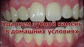 Как удалить зубной камень и налет без стоматолога