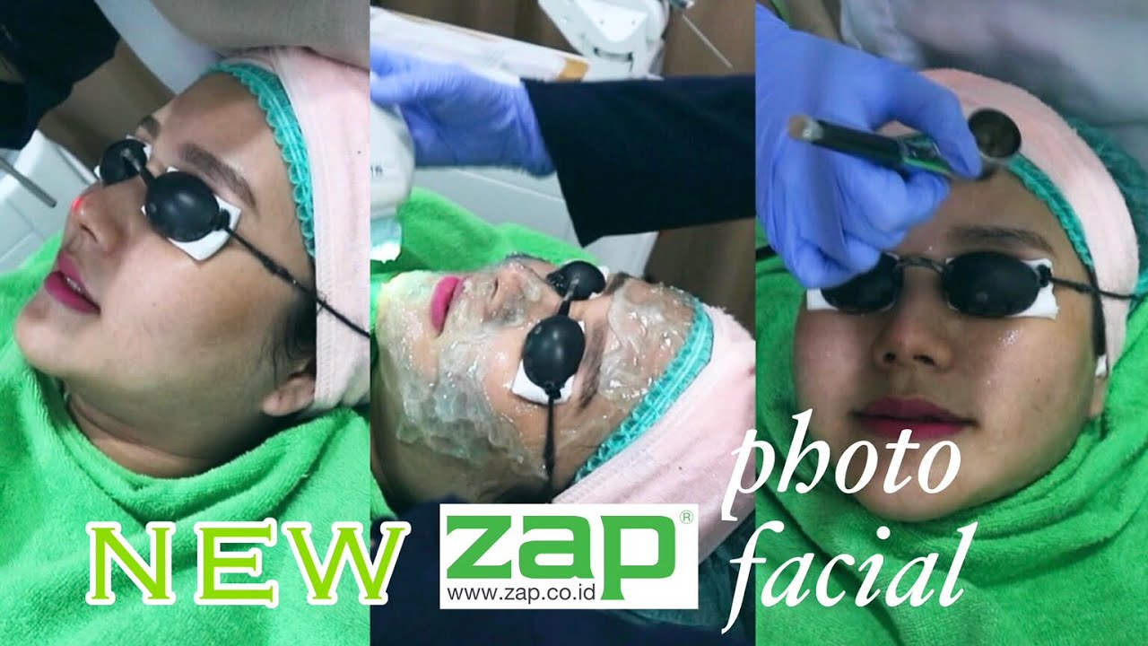 Review New Zap Photo Facial Cantikjamannow