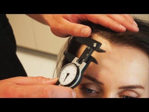 Выпадение волос - Симптомы и лечение народными средствами