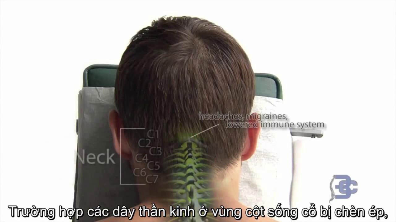 Trị Liệu Thần Kinh Cột Sống Giúp Bảo Vệ Cột Sống Chắc Khỏe – Maple Healthcare