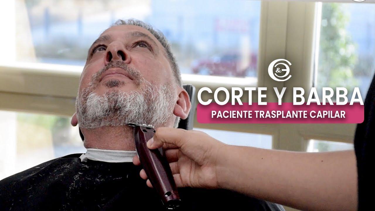 Corte Cabello y Barba en paciente con TRASPLANTE CAPILAR - CINCO MESES