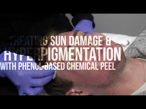 Chemical Peel for Sun Damage and Hyperpigmentation | RevePeel Fresh with Dr. Jason Emer